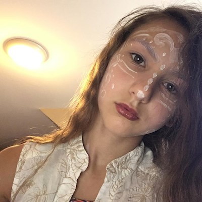 Facial disfigurement only noticeable in pho    - Changing Faces