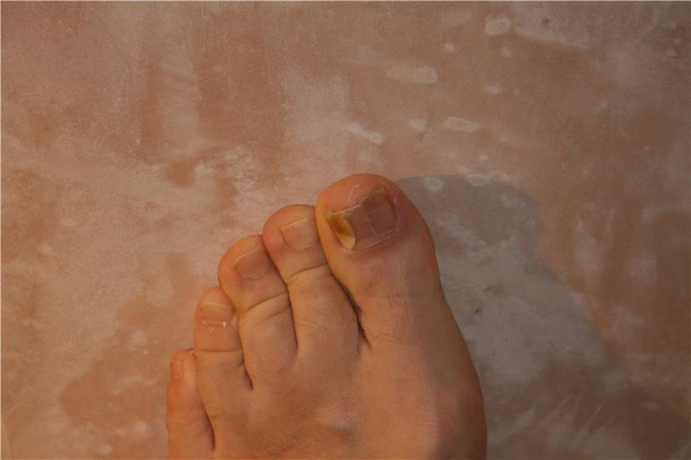 Fungal infections under toe nails - Fungal Infection ...