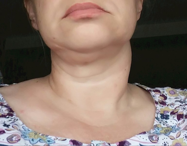 Swollen Neck And Thyroid Nodule But Blood Thyroid Uk