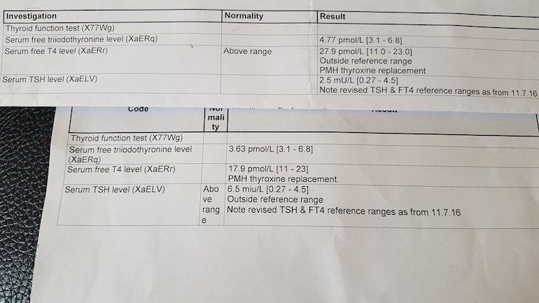 Whats Happening To Me Help I Have Attached Thyroid Uk