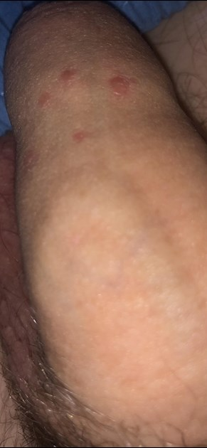 Red bumps on penis after sex