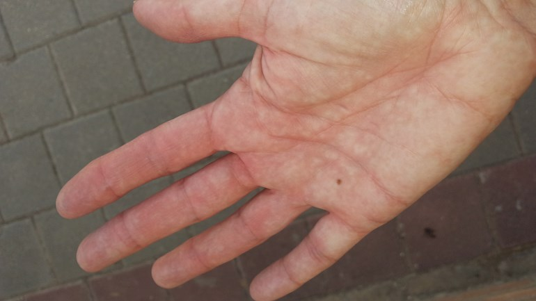 Red fingers, mottled red and white pa    - Scleroderma & Ray