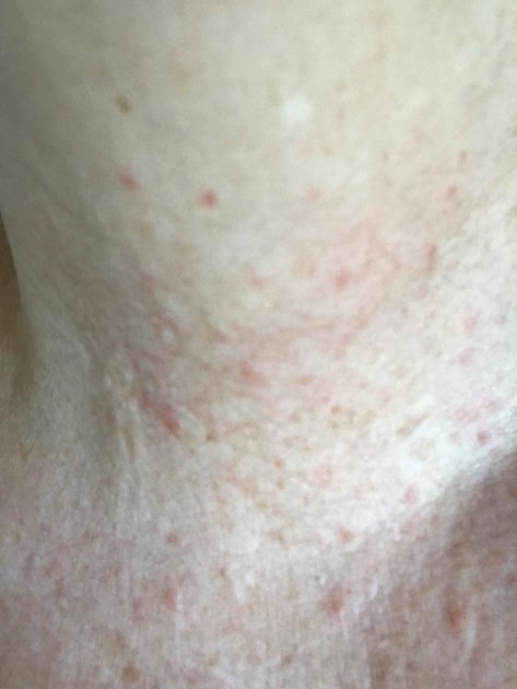 Rash On My Neck Good Morning All After Thyroid Uk