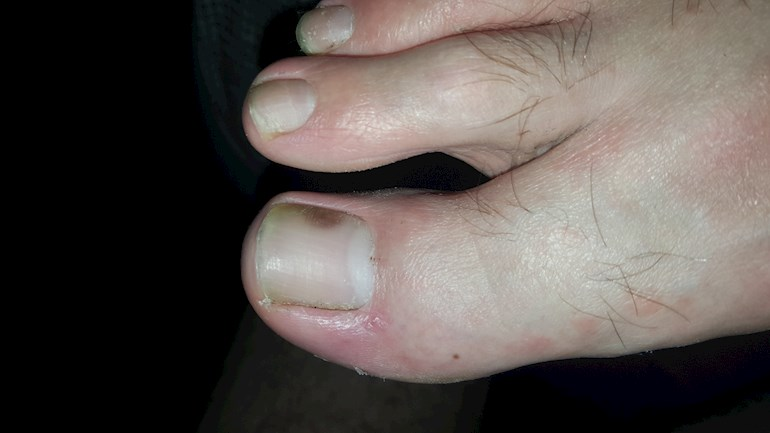 Brown spot on toenail...: I know this isn\'t really... - LUPUS UK