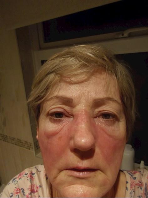 Graves Disease Permanent Eyeliner I Ve Been Thyroid Uk