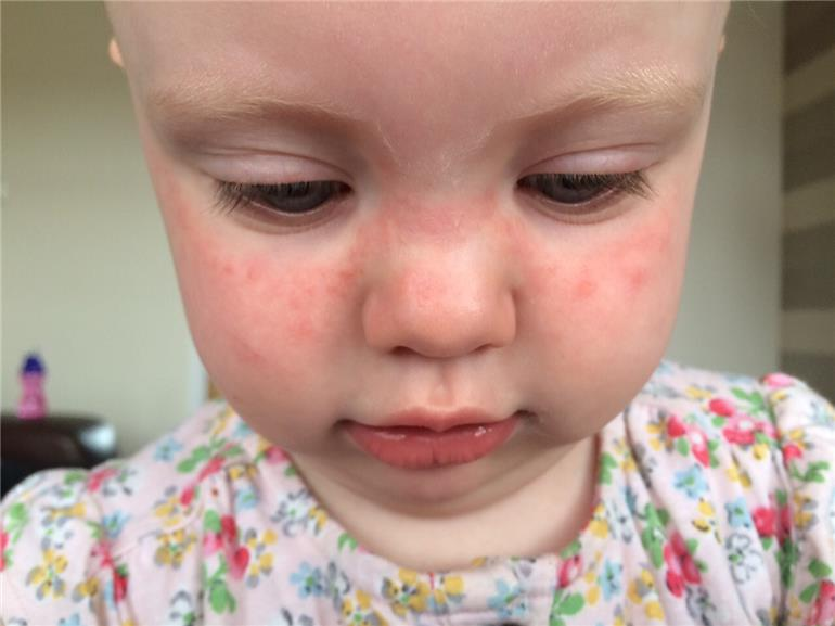 luthfiannisahay: Butterfly Rash On Toddler Face