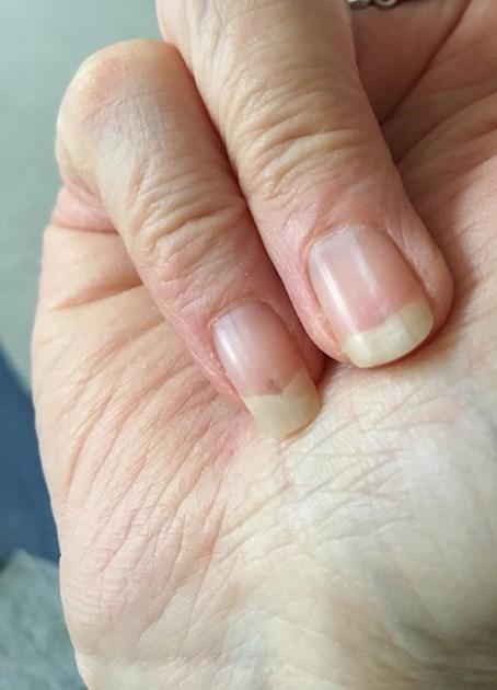 Nail problems. Anyone with similar or advice ... - Behçet\'s UK