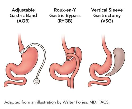Hypothyroid And Had Weight Loss Surgery Ie Gastric Bypass Band