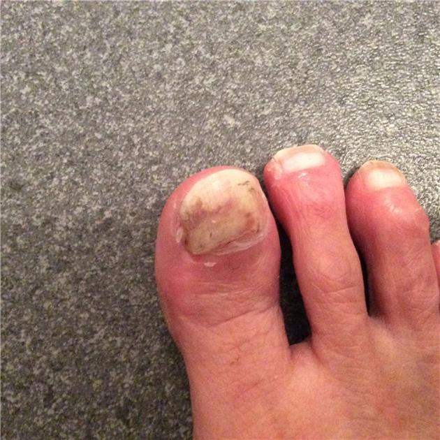 Nail problems : Had nail probs for about 9 moths... - LUPUS UK