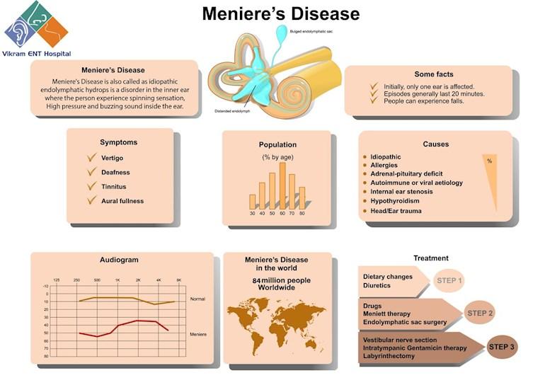 Menieres Disease Hope This Info Helps British Tinnitus