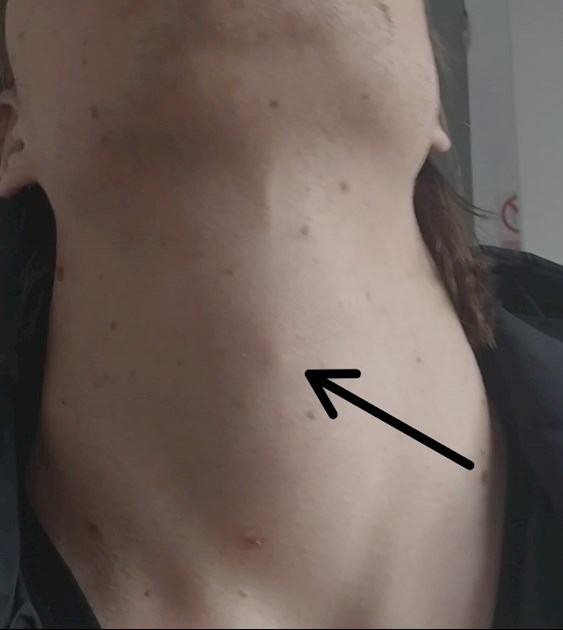 Pea Sized Lump Below Adam S Apple Creeping Me O Thyroid Uk