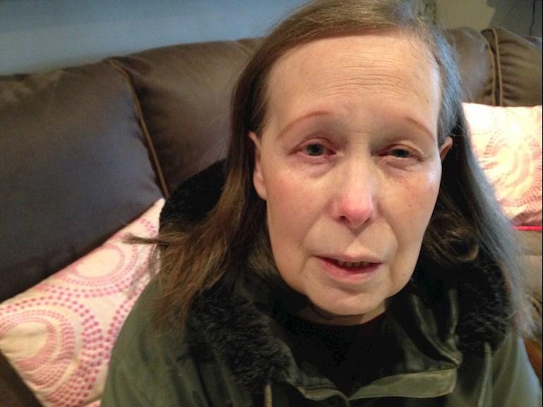Swollen puffy red eye lids : My mom feels run    - Thyroid UK
