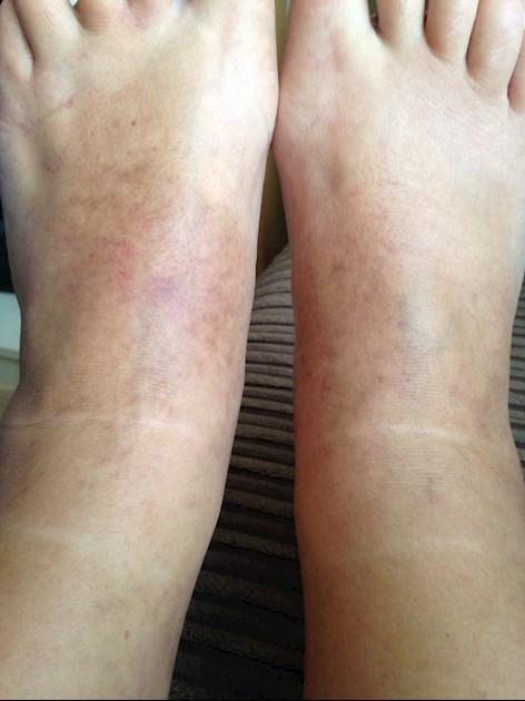 My feet: I have pitting edema below knee tight shiny    - LSN