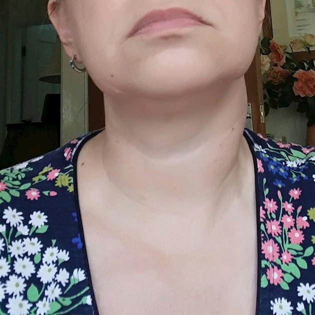 Baffling Lymph Node And Thyroid Nodule Could Thyroid Uk
