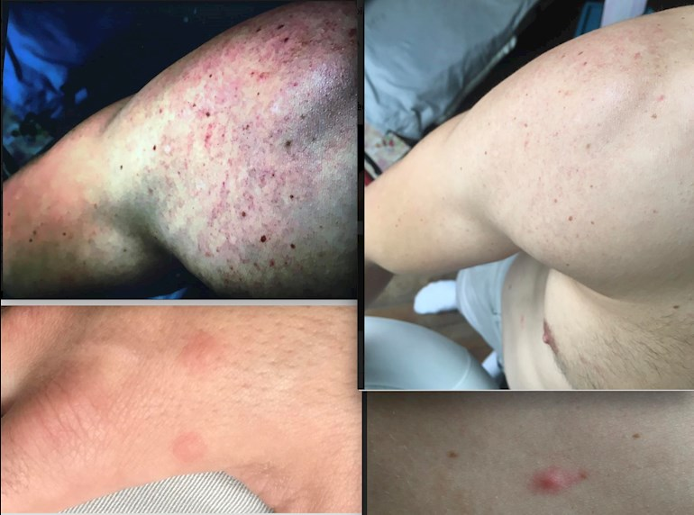 Is this a seroconversion rash?: All of these    - HIV Partners