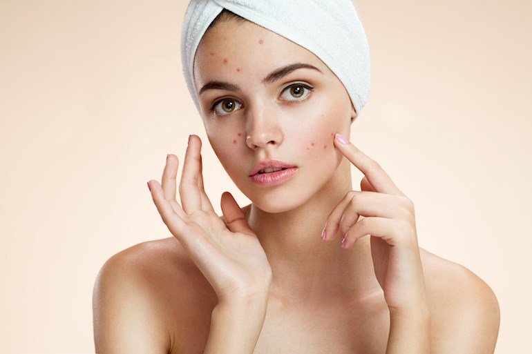 Know The Difference Between Hormonal Acne A Women S Health