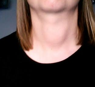 Neck Lump Hi Guys I Was Just Wondering The Thyroid Uk