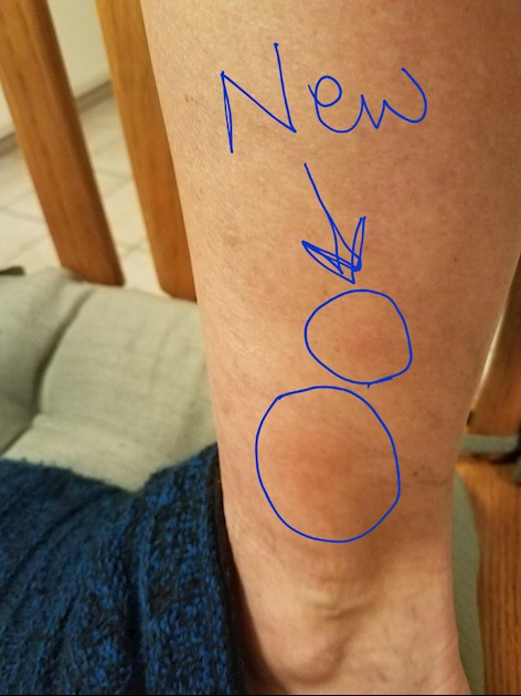 Lumps on lower leg: The photo is not very good    - LUPUS UK