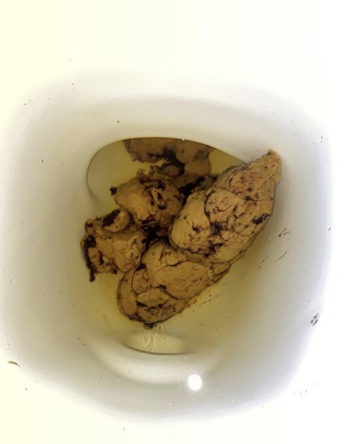 Is This Dry Blood In My Poop Or Is Th Colon Cancer Conn