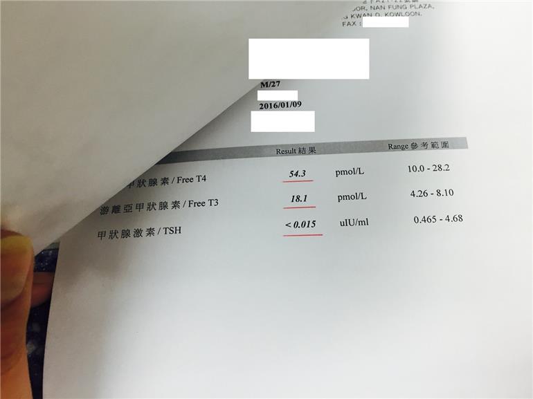 Shocking Blood Test Results Of Using 400mcg Lev Thyroid Uk