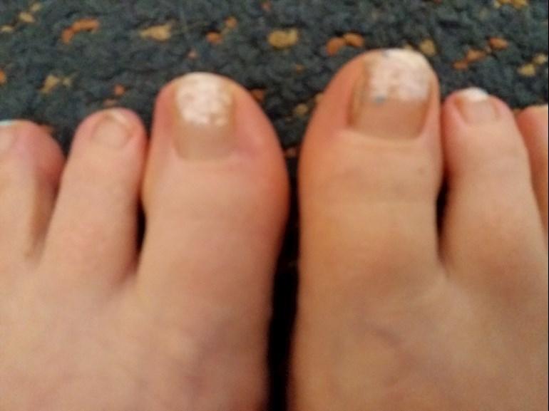 Toe nails: Has anyone had toe nails like... - Beyond Psoriasis