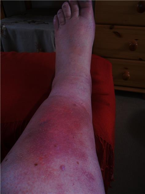 bef35a5ee927da Blister on shin: I have lymphoedema in both legs, but... - LSN