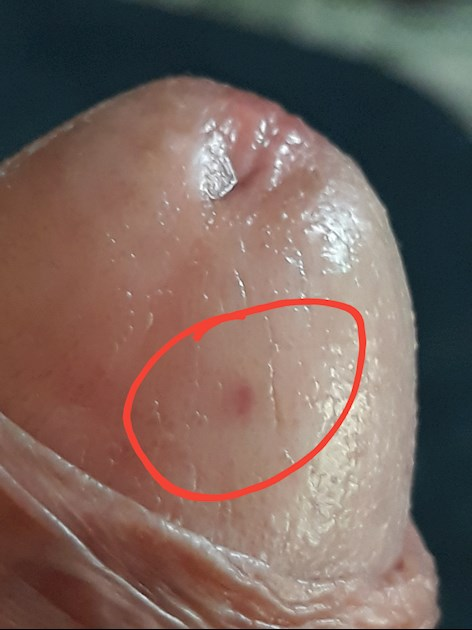 White spots on end of penis