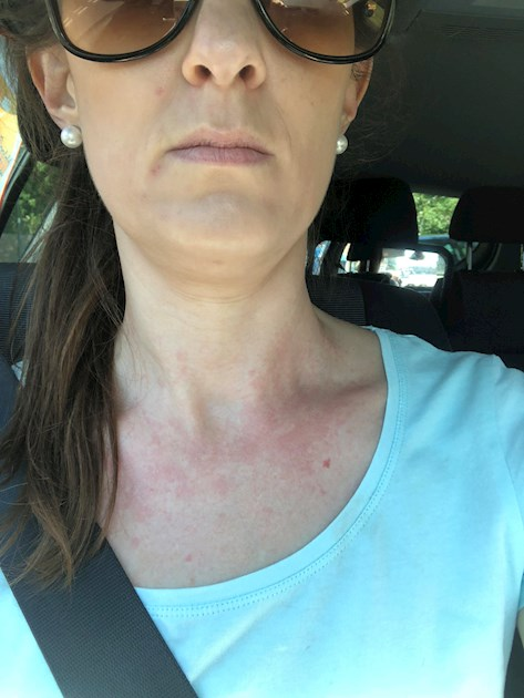 Hashimotos And Neck Rash Tingling Pain Thyroid Uk