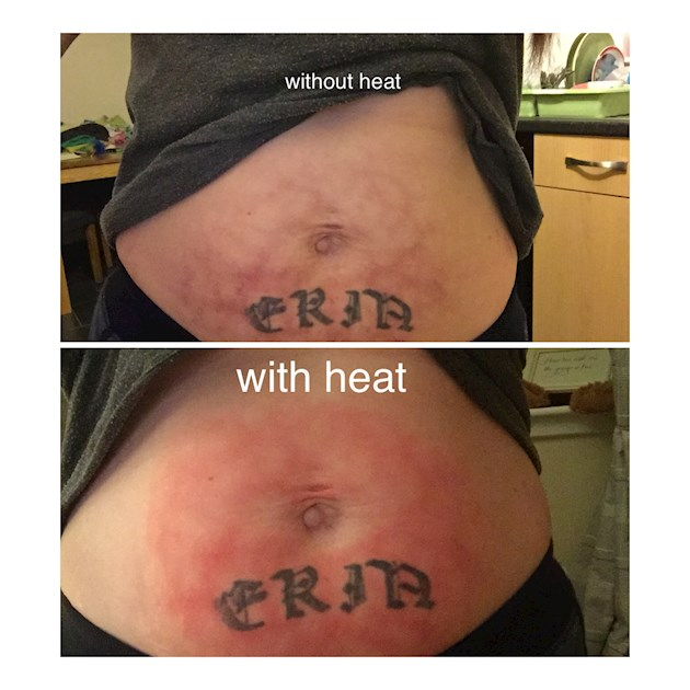 Mottled skin: Hi, I'm currently waiting on    - Endometriosis UK